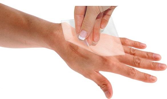GelSmart - pametna rešitev za žulje, otiščance, rane in brazgotine