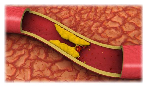 Povišan holesterol - bolezen sodobnega časa