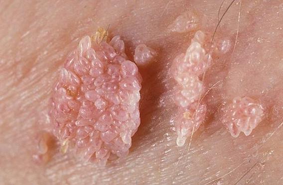 Hpv virus bradavice. Papillomavirus bradavice, Politica de întoarcere