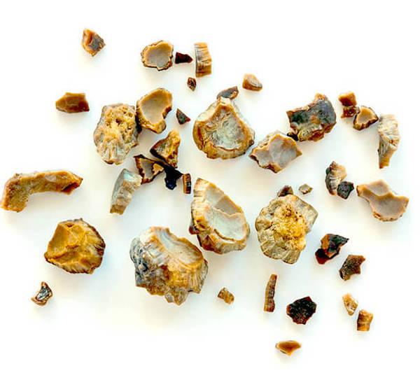 Ledvični kamni