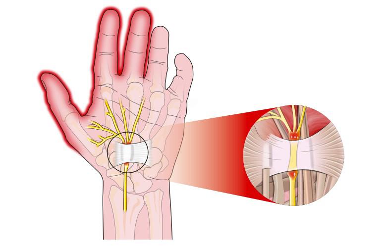 Pomen zapestne opornice pri zdravljenju sindroma karpalnega kanala